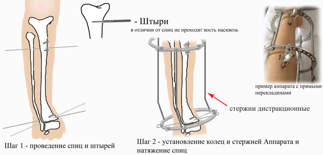 Ist es möglich, die Beine zu verlängern? Wie verlängern Sie die ...